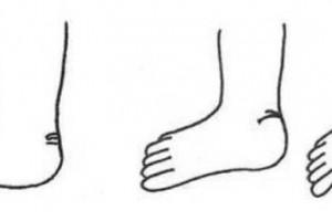 像马蹄子的脚是怎么回事?像马蹄子的脚是马蹄足吗?
