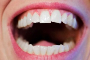 戴牙套纠正牙齿有哪些注意事项戴牙套纠正牙齿有用吗