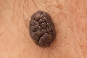 凸黑痣癌变的征兆凸黑痣癌变的防护