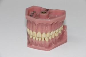 补牙对牙齿有危害吗补牙注意事项是哪些呢