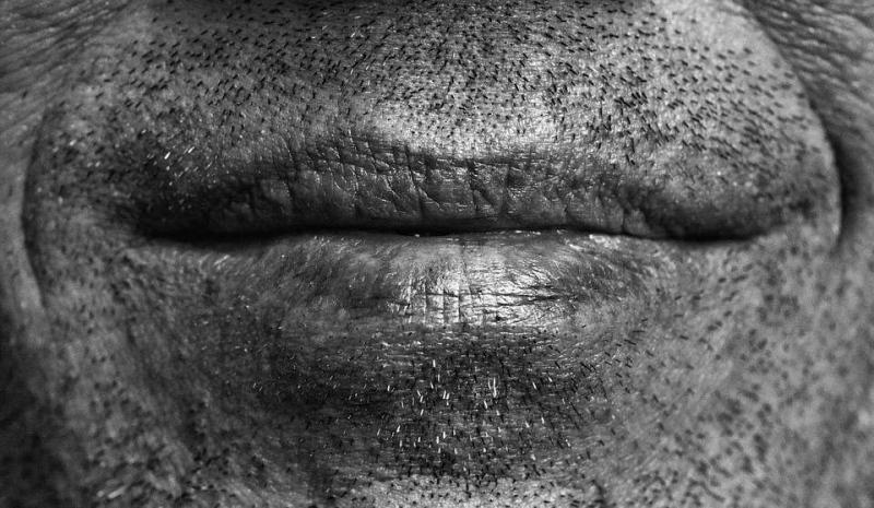 嘴角上火起泡怎样痊愈最快吃什么可以消除嘴角的火泡